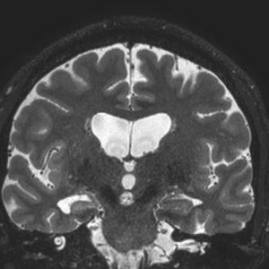 Epilepsia-01