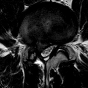 Hernia-discal-lumbar-01