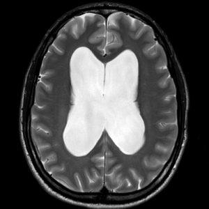 Hidrocefalia crónica del adulto