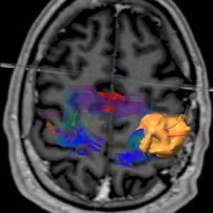 Tumor-cerebral-01