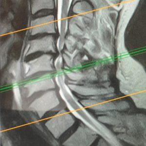 Mielopatía cervical-01